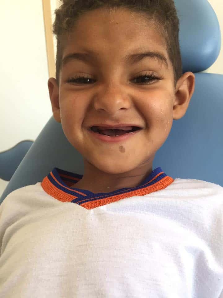 1: Malý chlapec žil 3 roky bez zubů, pak mu pomohla paní zubařka: Jakmile se uviděl v zrcadle, rozzářil se štěstím!