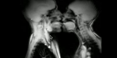 Epické záběry pohlavního styku pod magnetickou rezonancí, aneb vědecké péčko +18