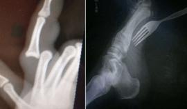 10 rentgenových FOTEK, ze kterých vás ZAMRAZÍ!
