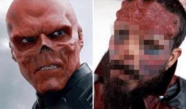 Nechal si odstranit nos, aby vypadal jako komiksová postava od Marvelu: Vypadá příšerně!