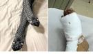 Žena spala v pyžamu s obrázkem hada a její noha vyčnívala z peřiny, manžel se lekl a přerazil jí nohu